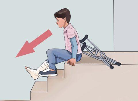 Как спускаться на костылях с лестницы без использования костылей